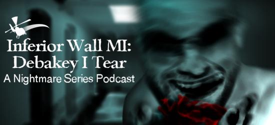 Inferior Wall MI: Debakey I Tear